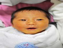 新生儿生理性黄疸