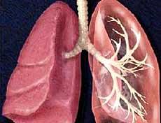 间质性肺病