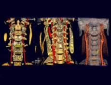 椎动脉型颈椎病病因_临床表现_检查_诊断_治
