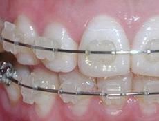 成人牙颌正畸