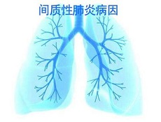 间质性肺病护理
