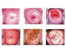 阴道炎患者还能怀孕吗