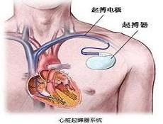 起搏器综合征疾病检查