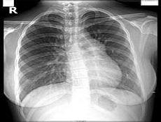 起搏器综合征疾病病因