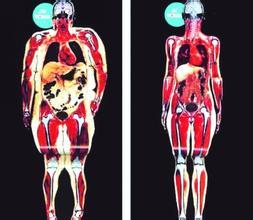 判断脂肪肝