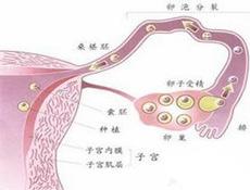 输卵管性不孕
