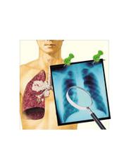 大血管主动脉瘤与肺癌的区别