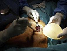 隆胸手术的方法介绍