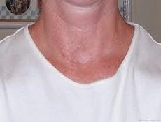 甲状腺炎症
