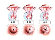宫颈口有小硬疙瘩图片_宫颈癌
