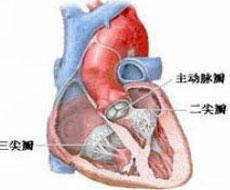 心脏瓣膜病