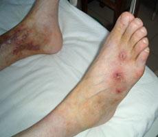 变应性血管炎的症状表现