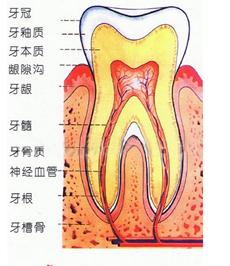 牙龈切除术