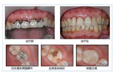 牙齿再植术