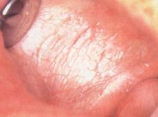 疱疹性口炎和唇疱疹