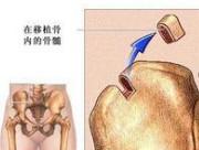 骨髓移植的成功率与费用