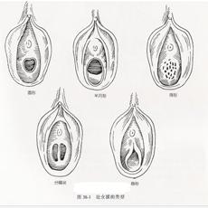 女性生殖整形