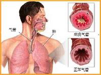 老年支气管哮喘