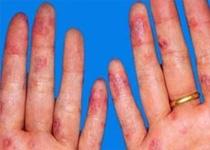 传染性红斑